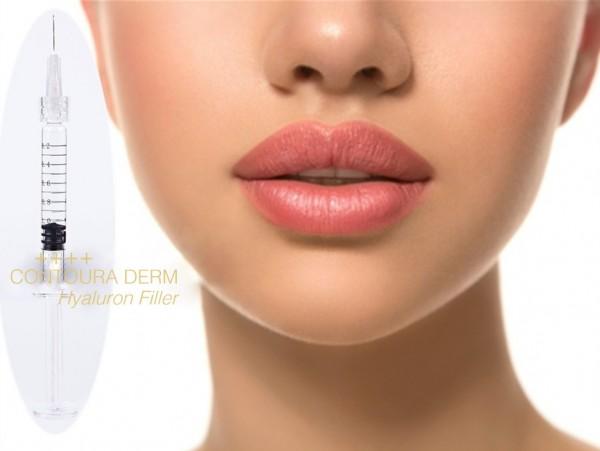 Lip Filler Premium Smiling ++++ Pre-Filled Syringe